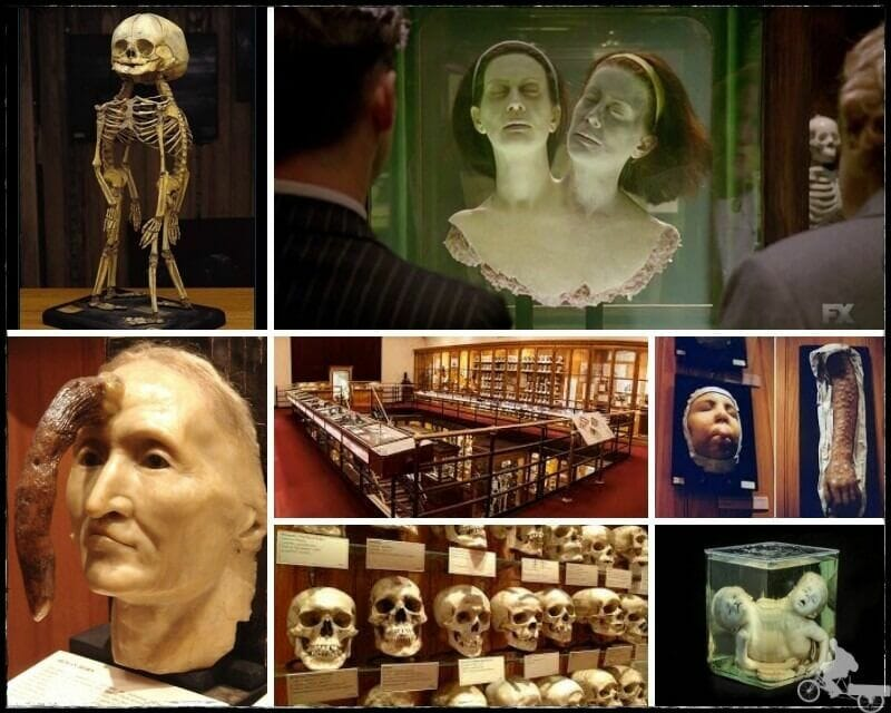 museo Mutter de Filadelfia